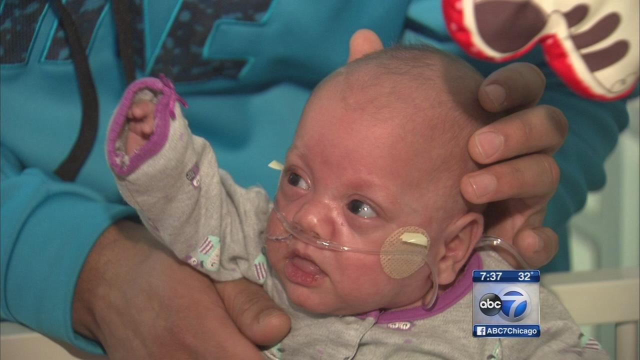 Baby born at 13 oz. gets to go home