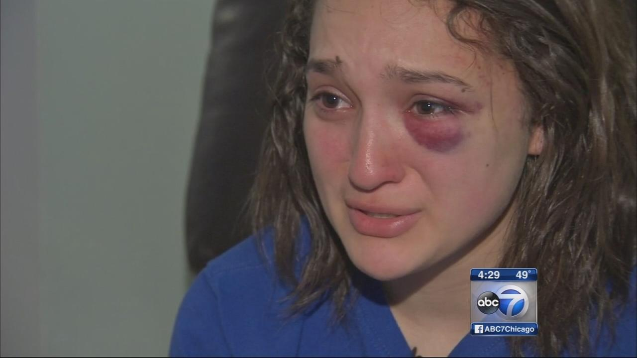 DePaul student beaten on CTA Blue Line train