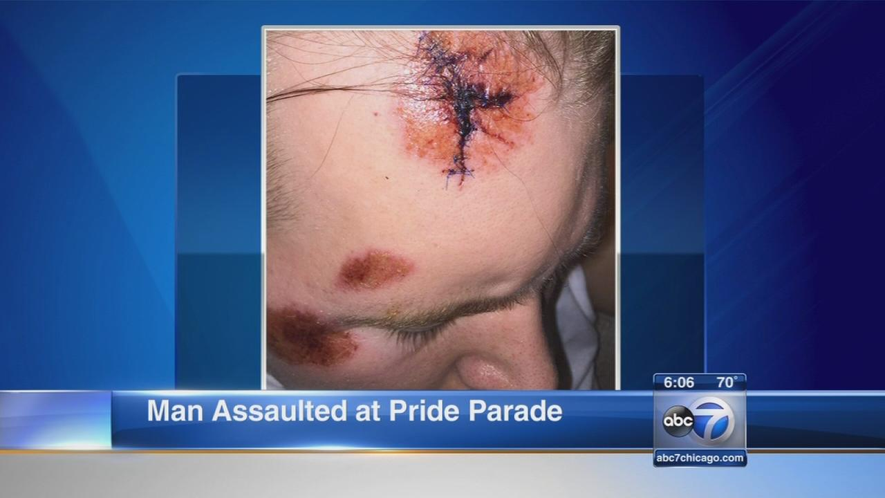 Chicago man says he punched at Pride Parade