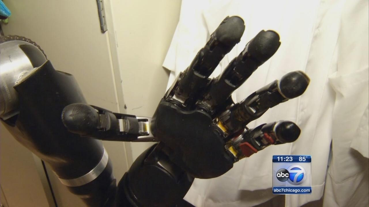 Researchers develop mind-controlled prosthetic hand