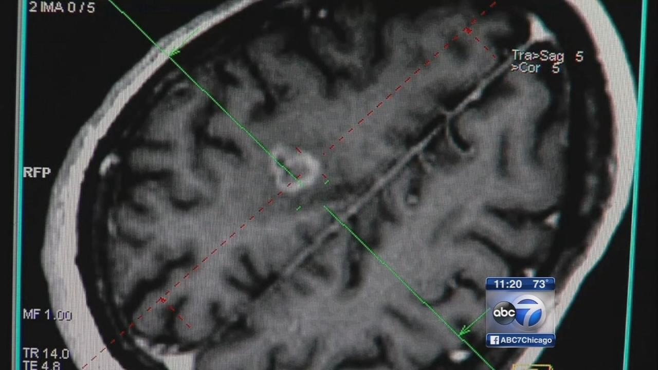 Clinical trial offers new hope for brain cancer patients