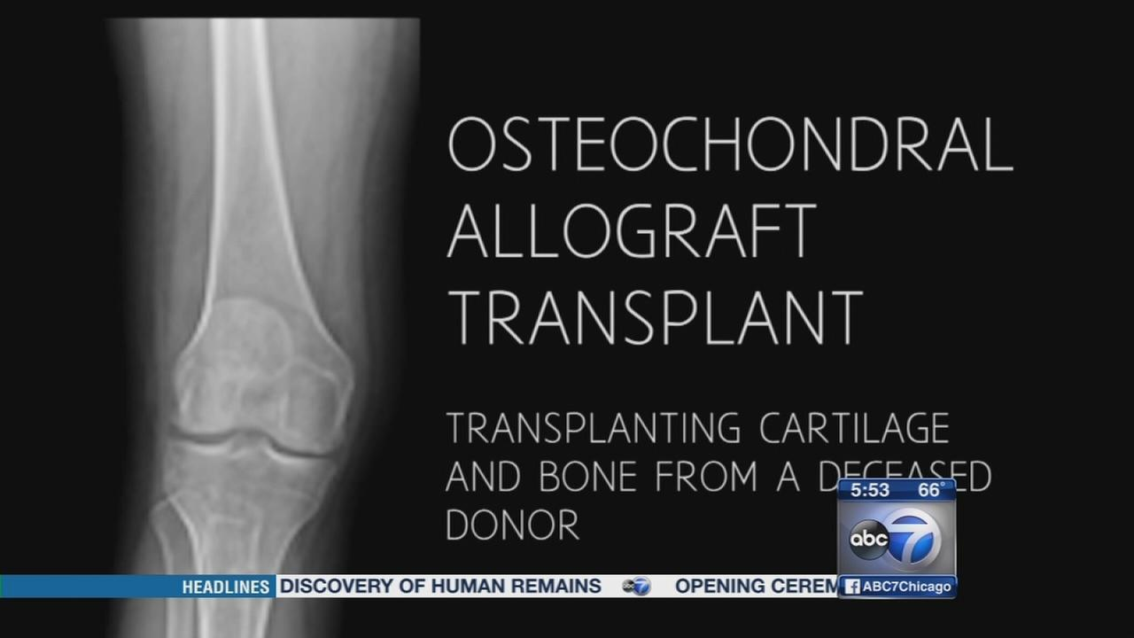 Allograft transplant easing chronic knee pain in young patients