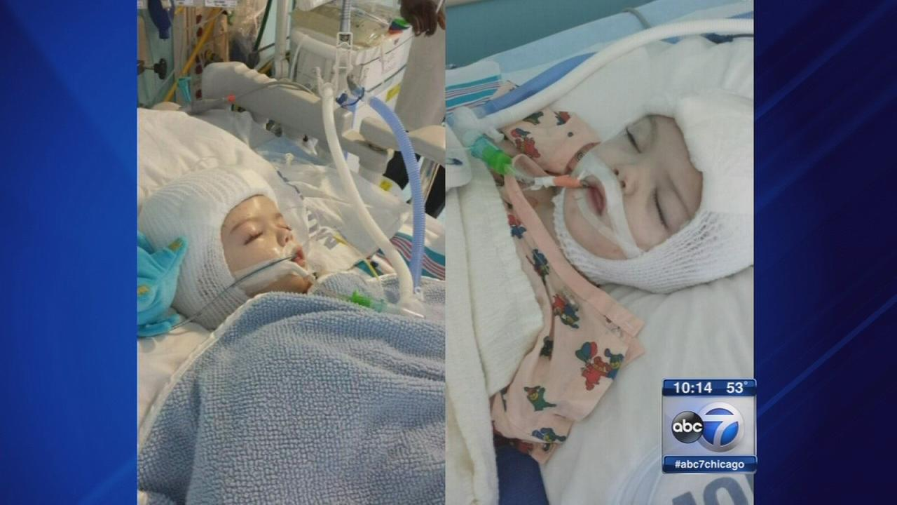 Conjoined twins from Braidwood successfully separated