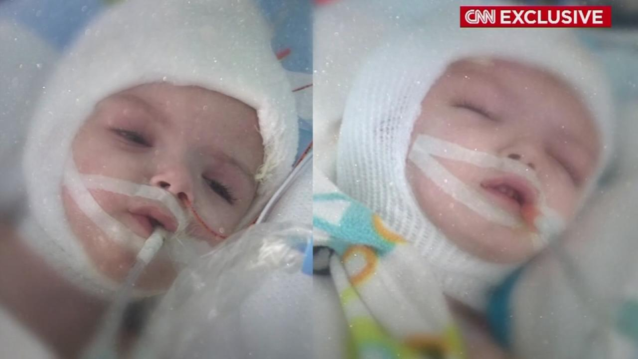 Conjoined twins continue recovery after historic surgery