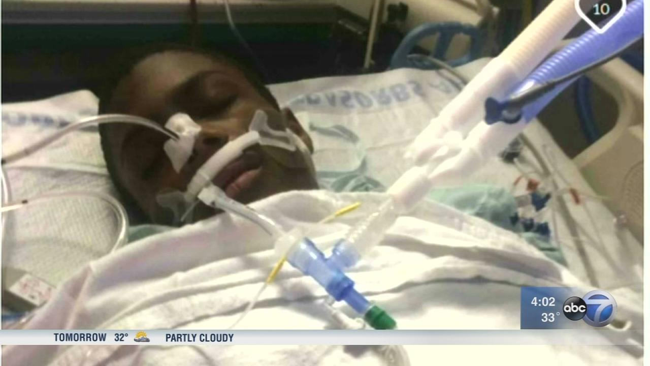 Boy, 15, still hospitalized after being shot 4 times