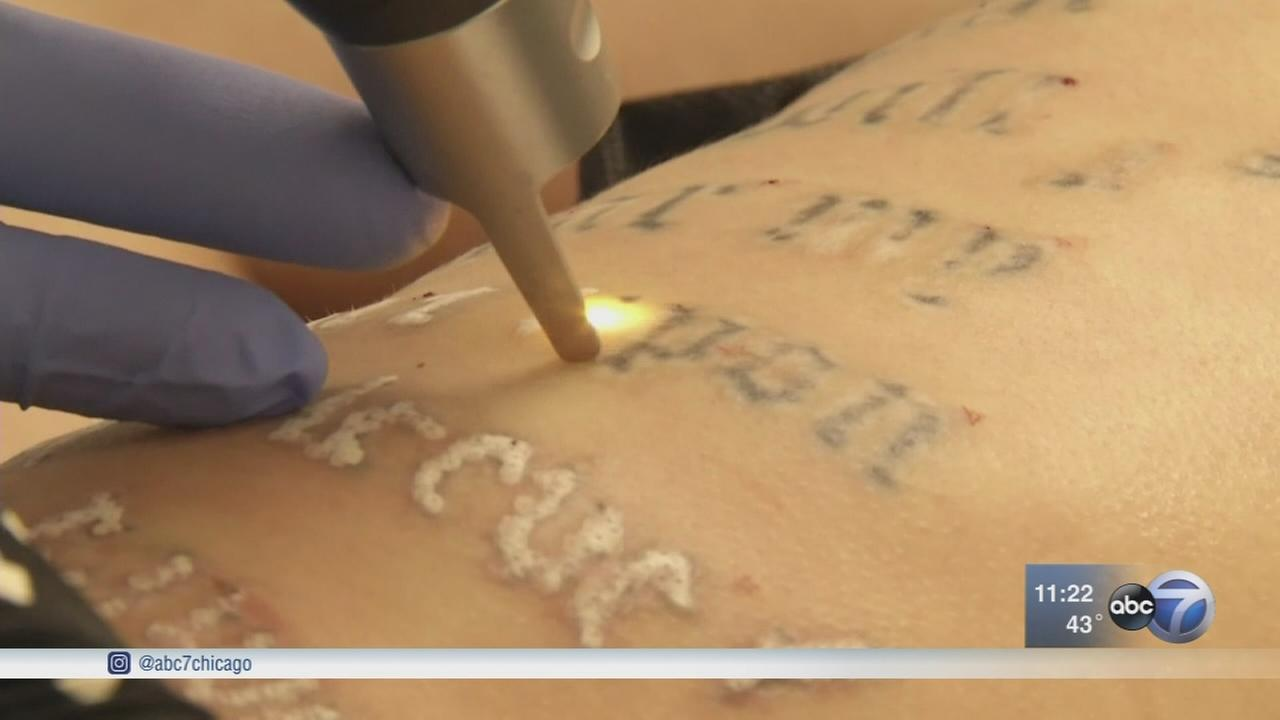 New laser removes tattoos in fewer sessions