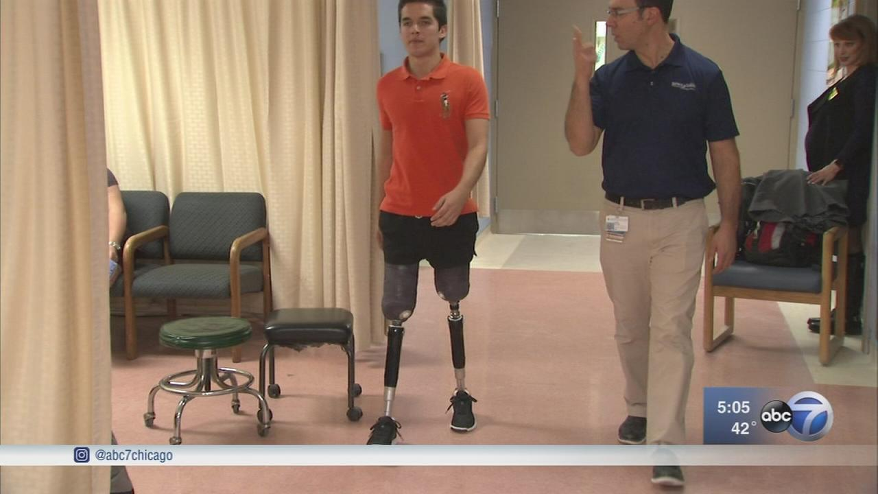 Boston Marathon bombing survivor helps Chicago man get prosthetics