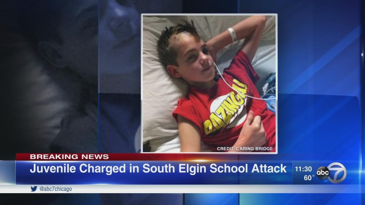 Boy, 14, faces charges in severe beating of South Elgin classmate