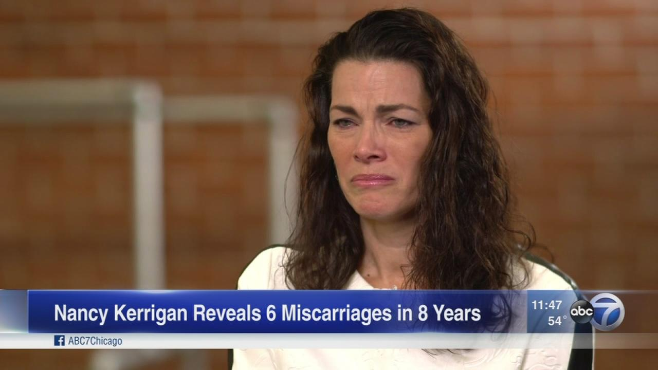 Nancy Kerrigan opens up about miscarriages