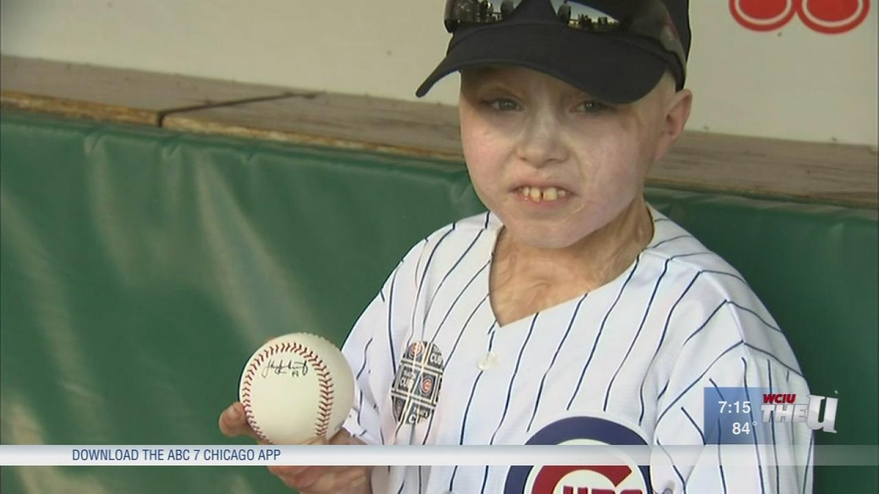 Burn victim gets day of fun in Chicago