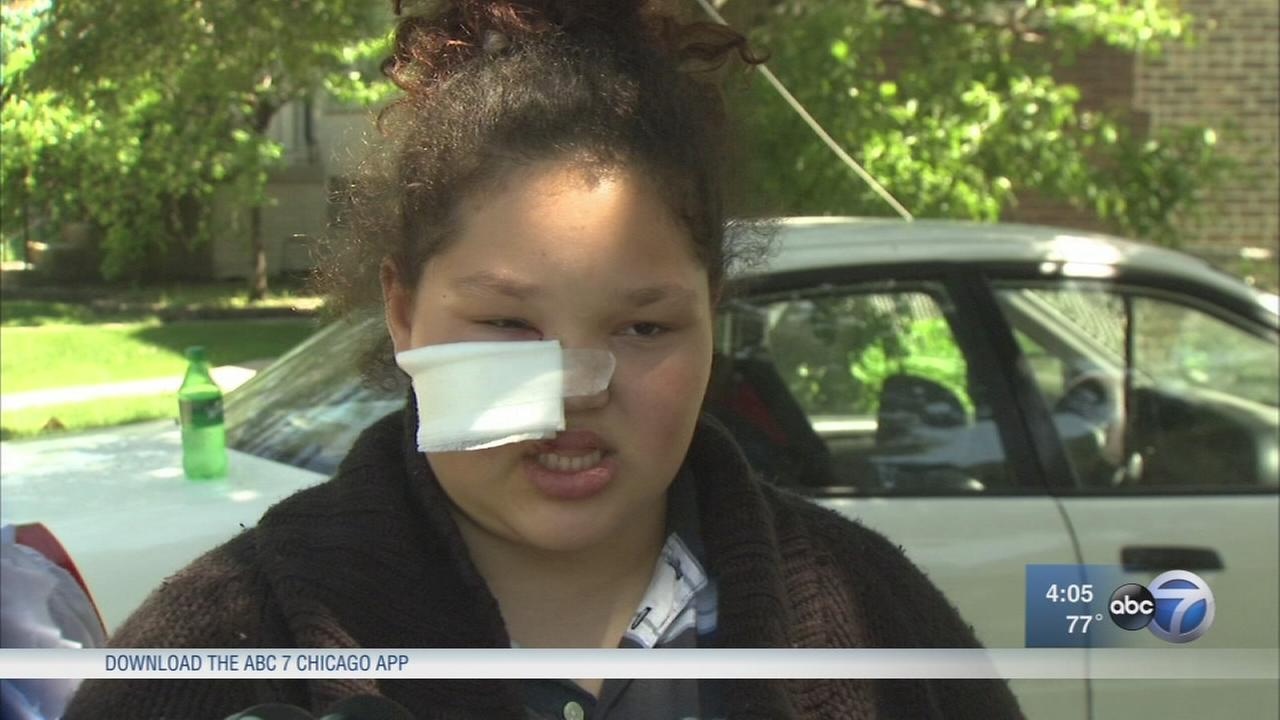 12-year-old girl attacked by pit bull in Stickney