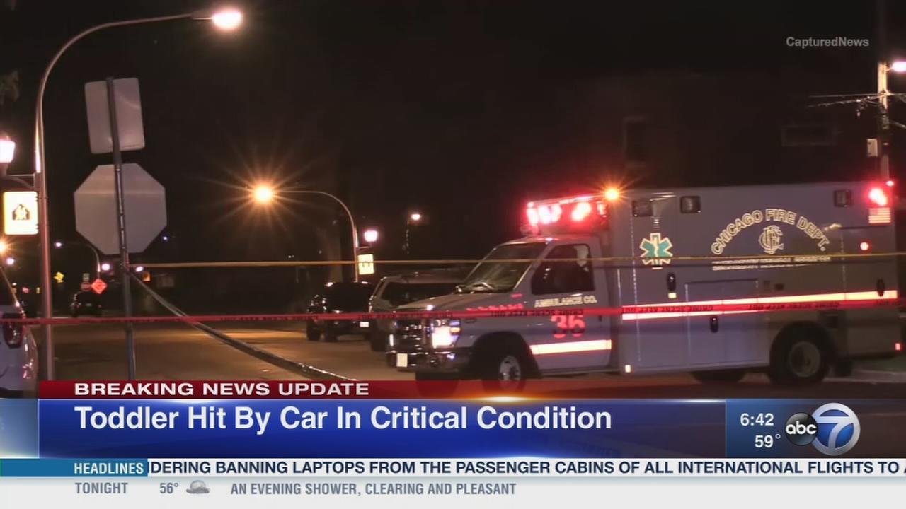 Girl, 2, critically injured after being hit by car