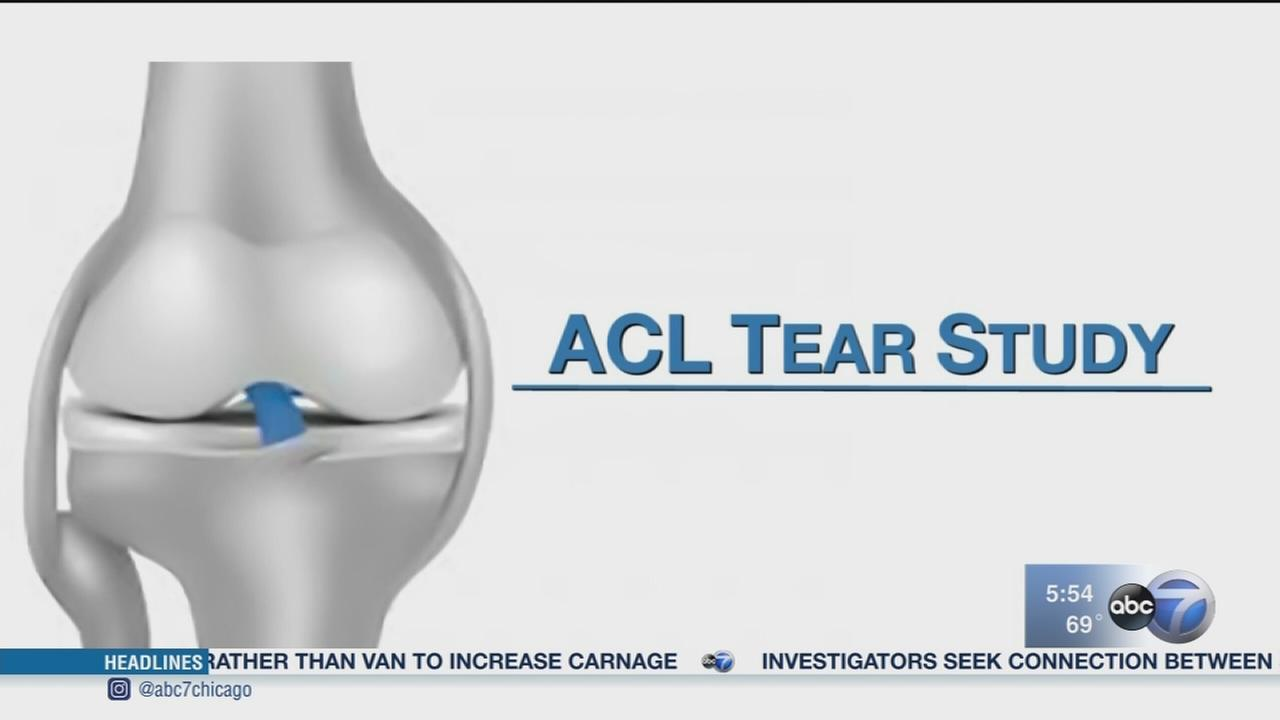 Program prevents girls from re-injuring ACLs