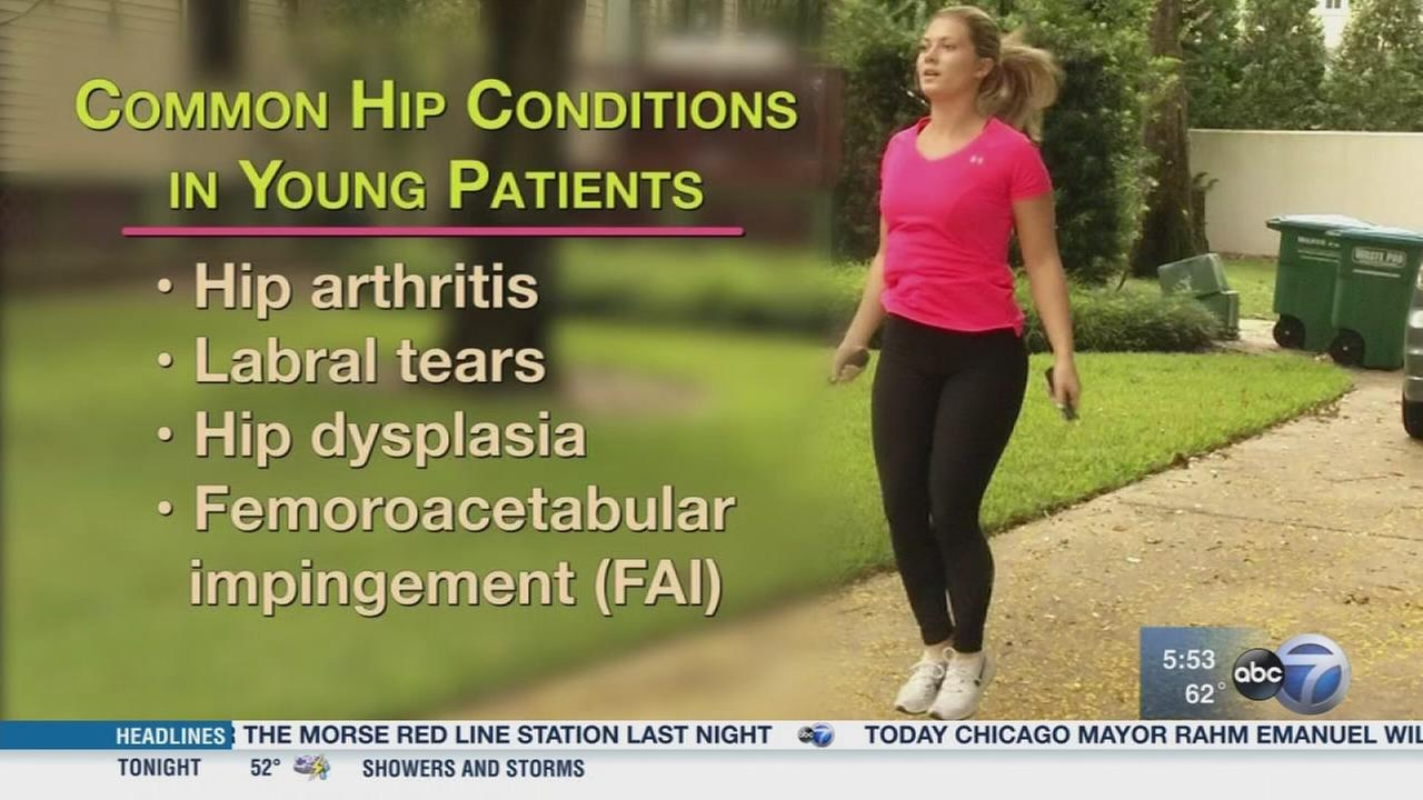 Hip preservation surgery an alternative to hip replacements for young patients