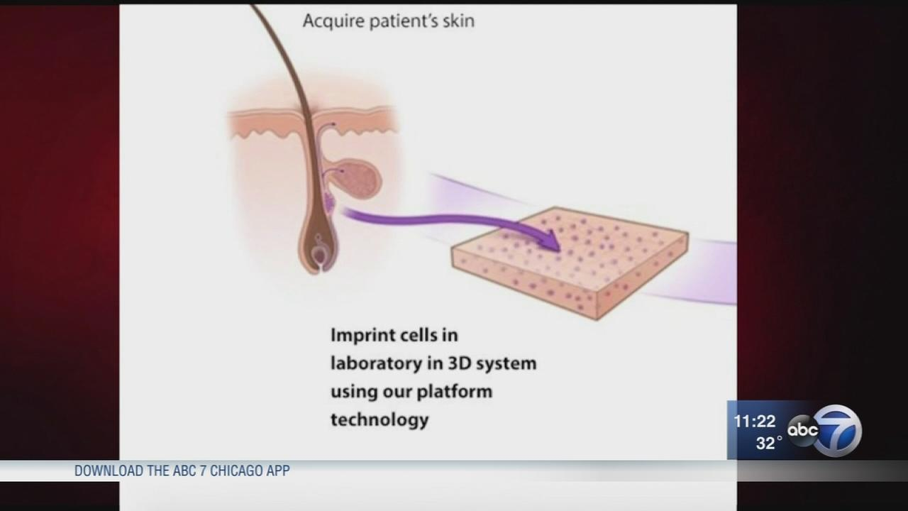 New product could help burn patients grown skin