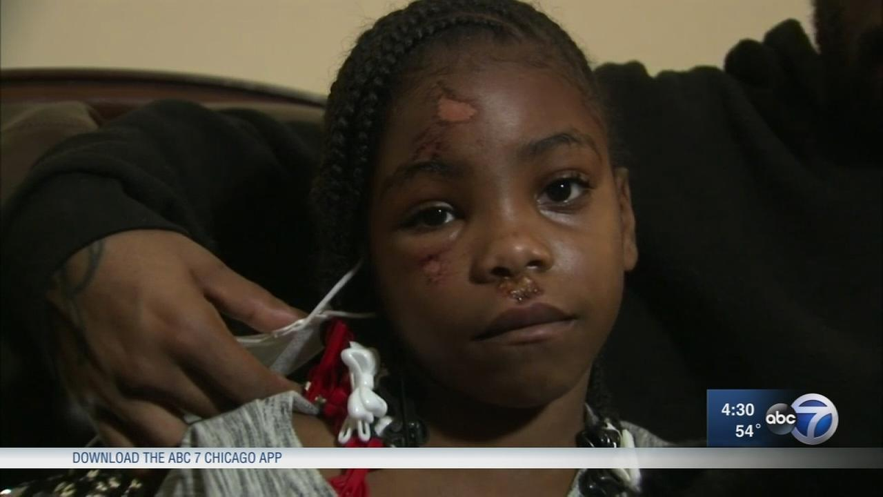Parents angry after daughter injured on school field trip