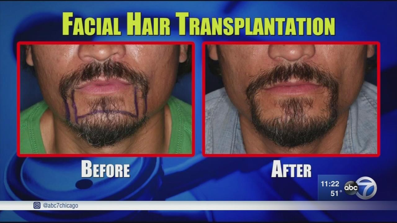 Facial hair transplants give men perfect beards