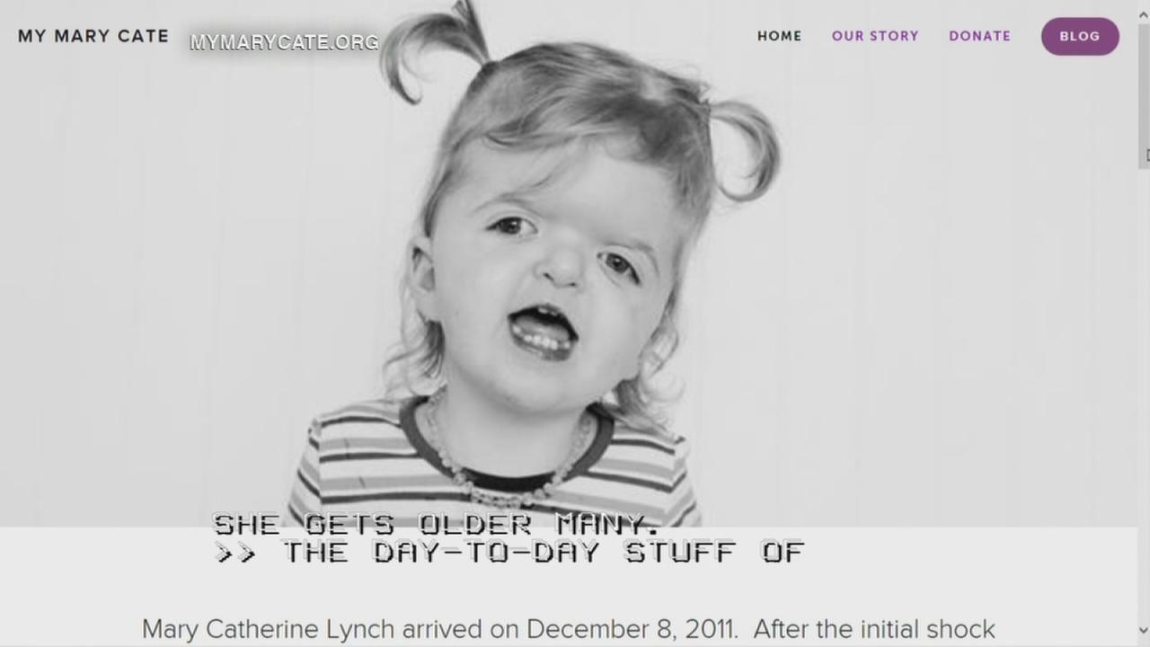 Apert Syndrome is a craniofacial condition