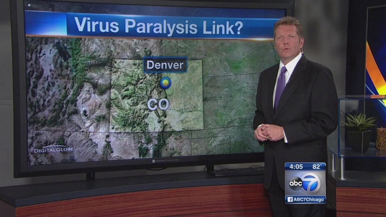 Enterovirus link to Colorado paralysis cases probed