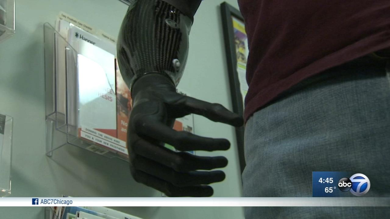 Vietnam Veteran gets new bionic hand