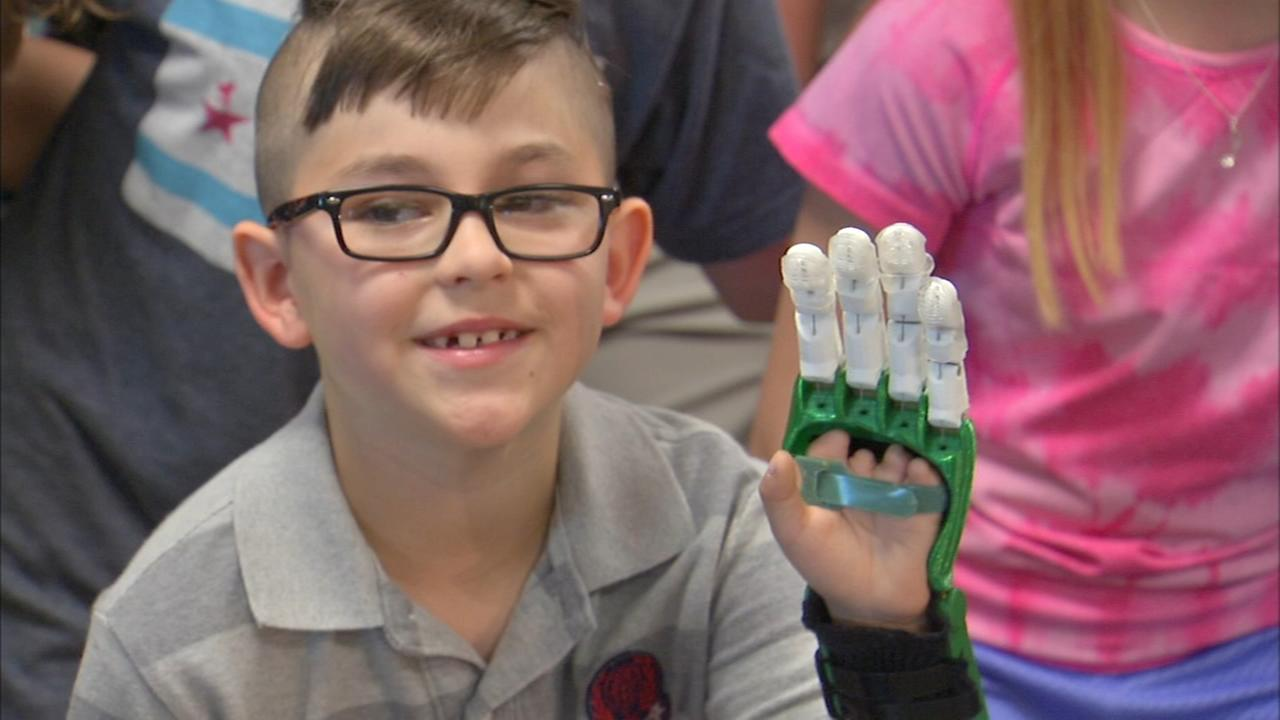 Glenview students make prosthetic hand for 8-year-old boy