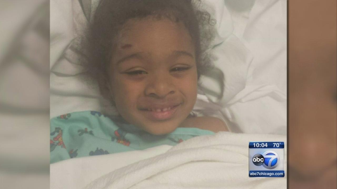 Girl, 4, injured in South Side porch collapse