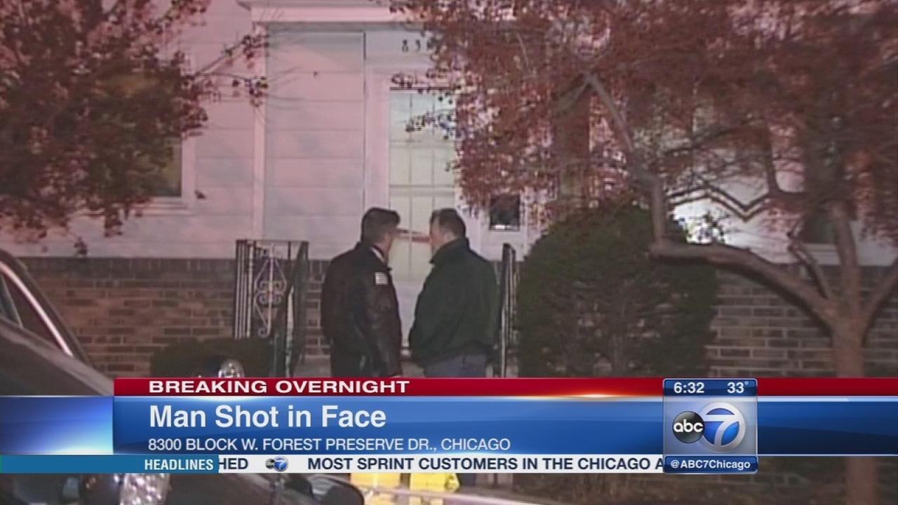 Man, 65, shot in face in Belmont Terrace home
