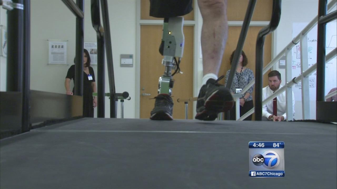 Bionic leg changes mans life - without surgery