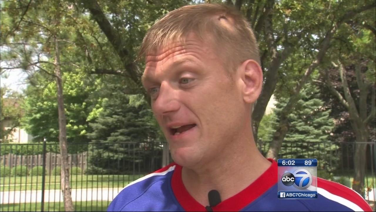 Victim describes violent mugging in Lakeview