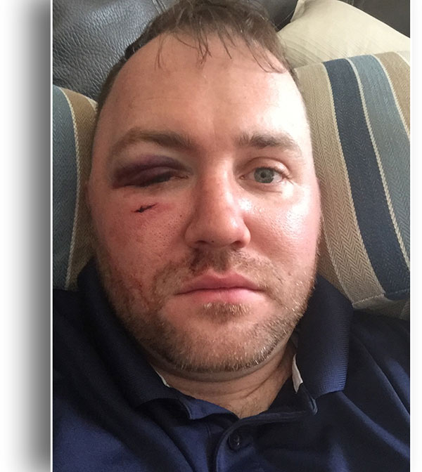 <div class='meta'><div class='origin-logo' data-origin='WPVI'></div><span class='caption-text' data-credit=''>Patrick Kane says he was attacked outside Geno's Steaks in South Philadelphia.</span></div>
