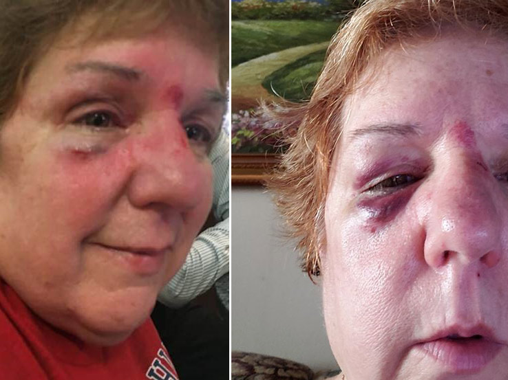 Flying Hot Dog Launched At Baseball Game Leaves Woman With Black Eye