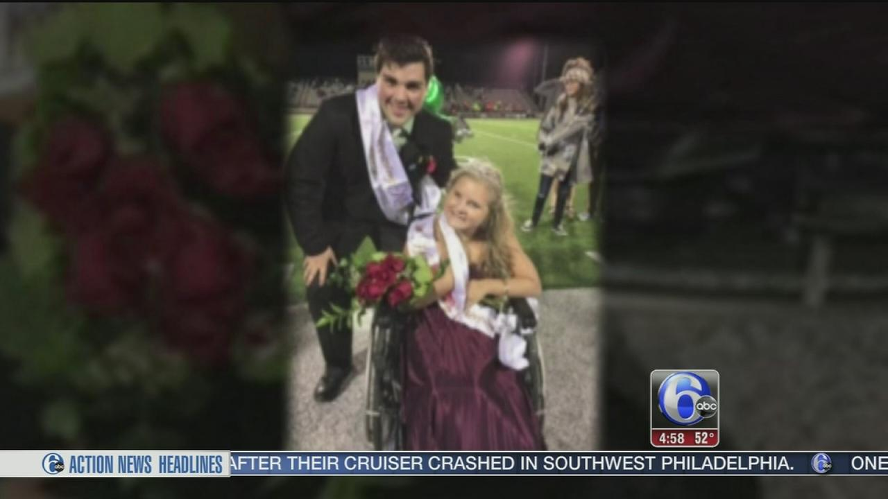 VIDEO: Teen with medical condition honored at prom