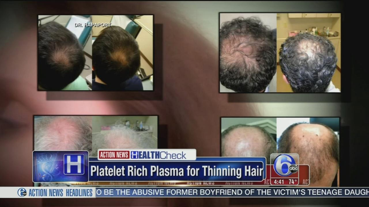 VIDEO: Plasma for thinning hair