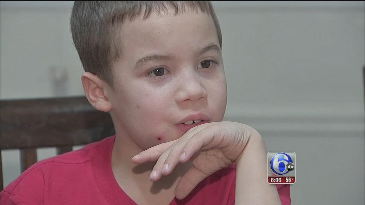 VIDEO: Boy shot with BB gun scared for family