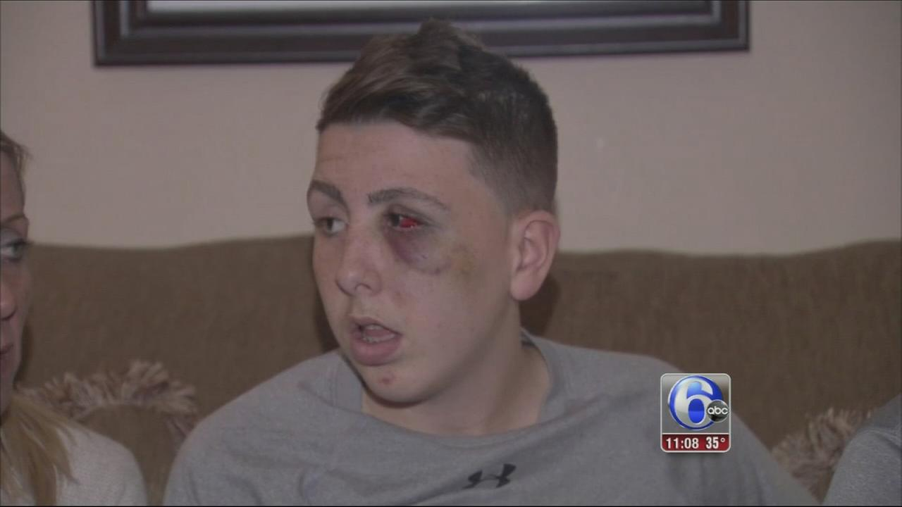 VIDEO: Student beaten