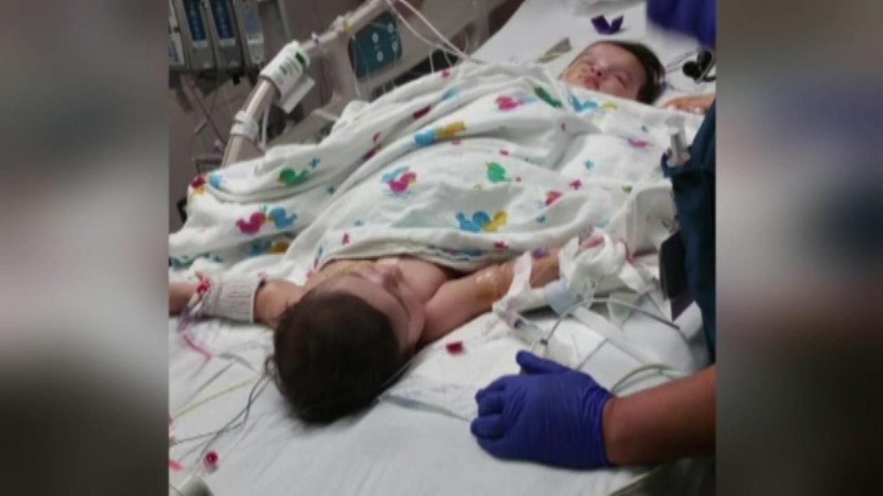 Surgery has separated two 10-month-old sisters born conjoined below the waist. Ximena and Scarlett Hernandez-Torres shared a colon and bladders that will be reconstructed.