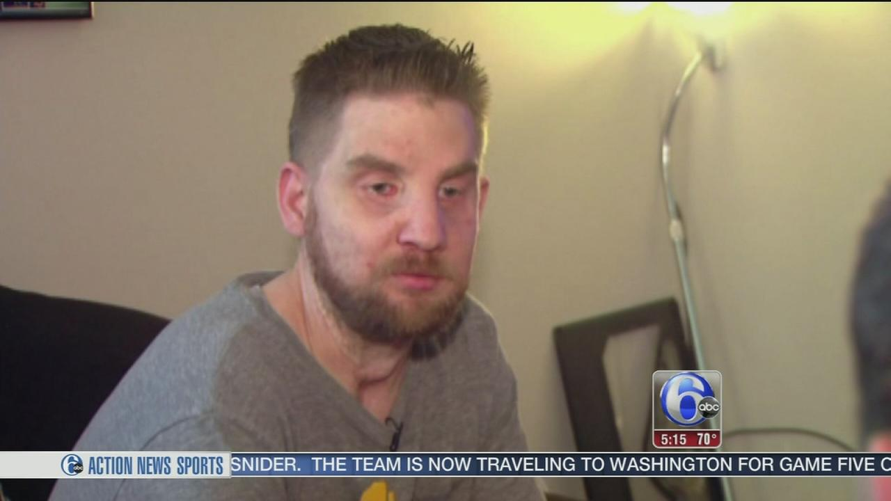 VIDEO: First face transplant patient speaks out