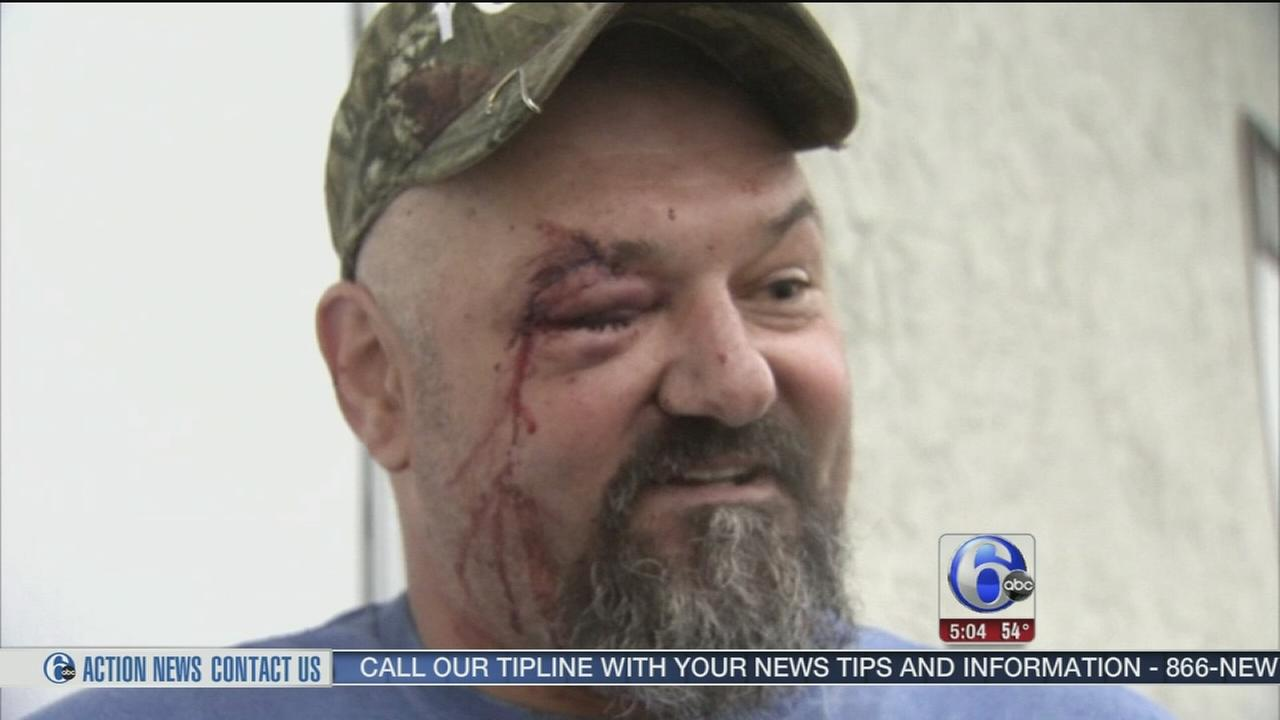 VIDEO: Brick thrown from overpass, hits trucker in head