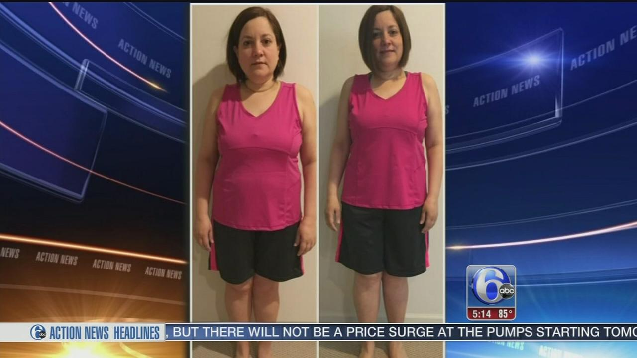 VIDEO: New kind of weight loss procedure