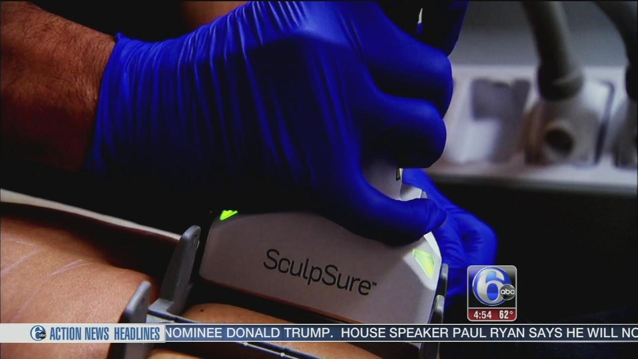 VIDEO: New procedure promises fat removal without the surgery