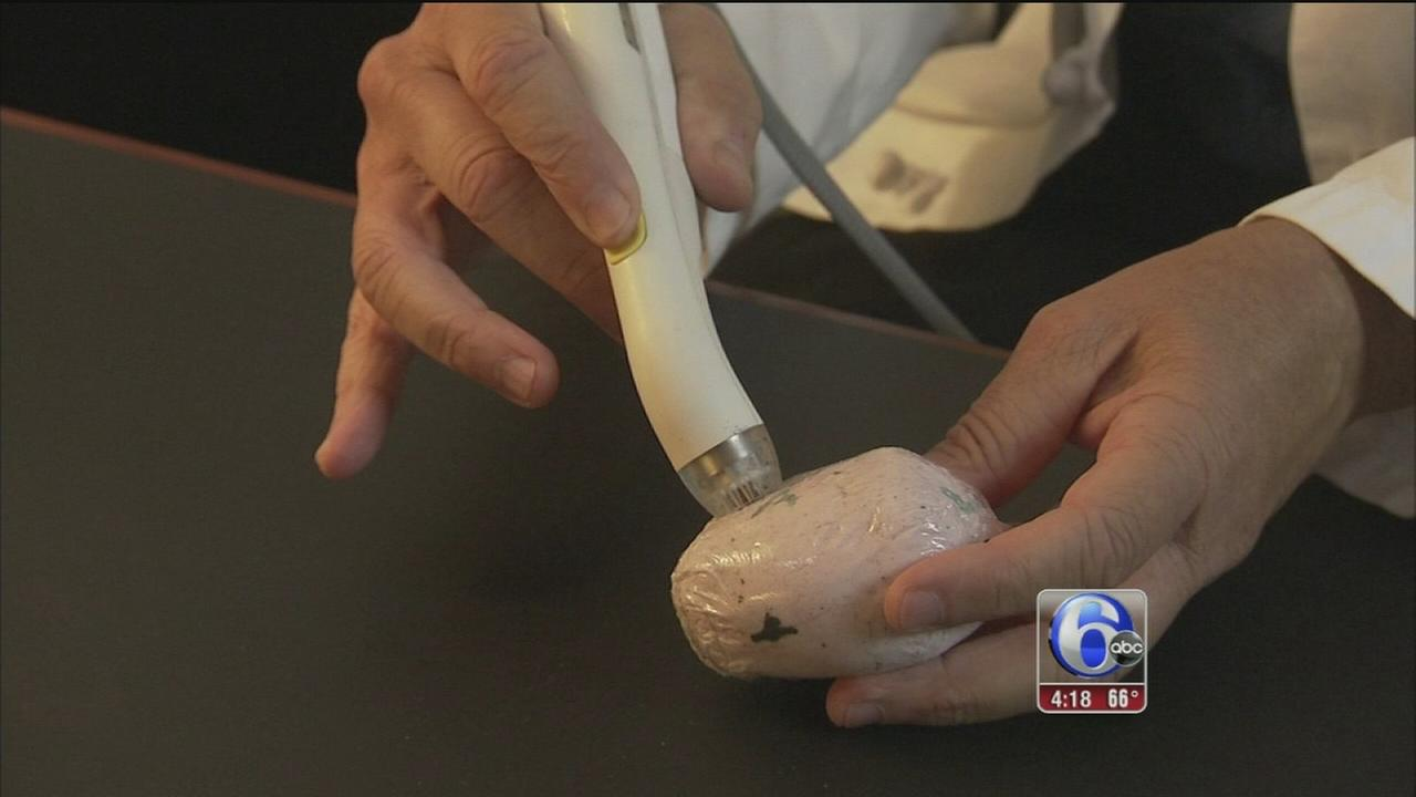 VIDEO: New tool helps doctors remove breast cancer tumors more precisely
