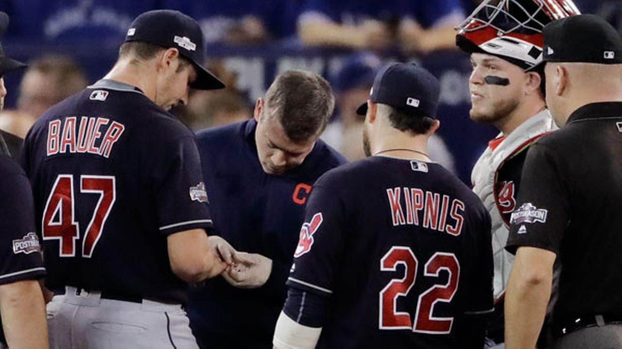 Cleveland Indians starting pitcher Trevor Bauer (47) has the cut on his finger looked at during the first inning in Game 3 of baseballs American League Championship Series
