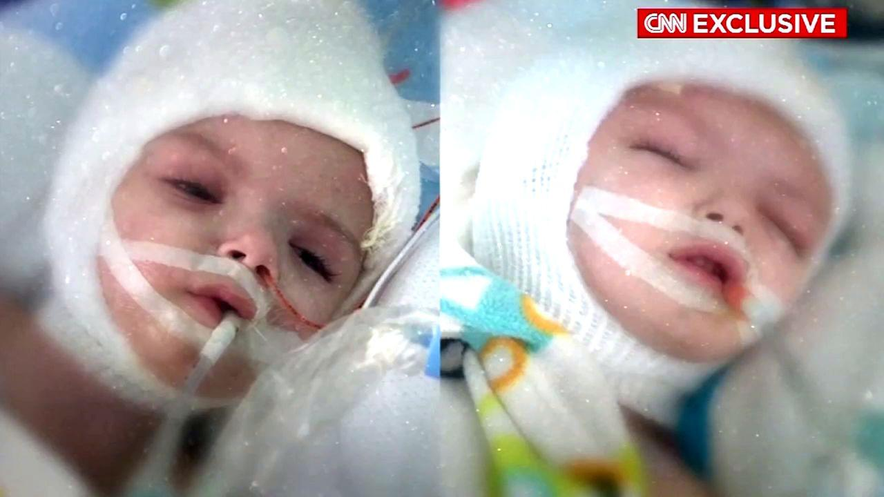 At 13 months old, conjoined twin boys were successfully separated, and are now doing great and on the road to recovery.