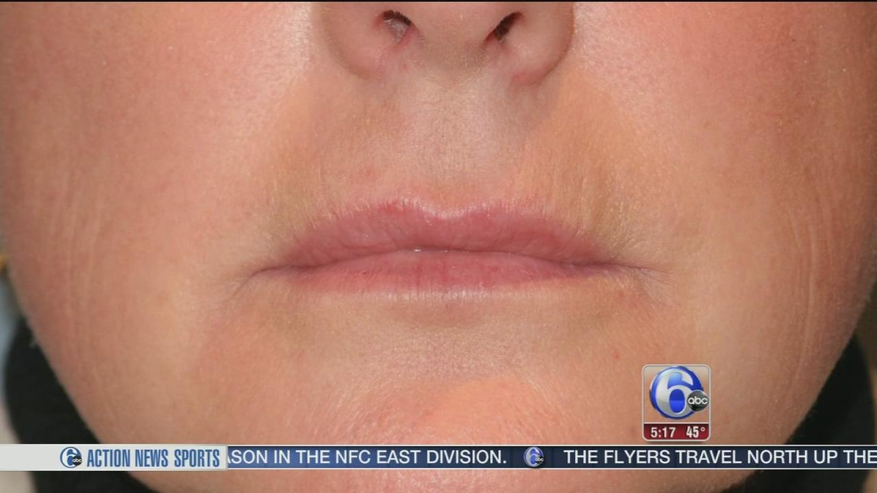 New technology helps wrinkle filler have longer-lasting effects