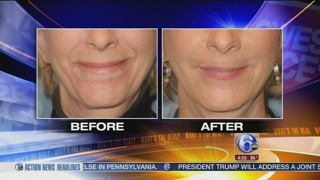 Whats the Deal: Injectible fillers