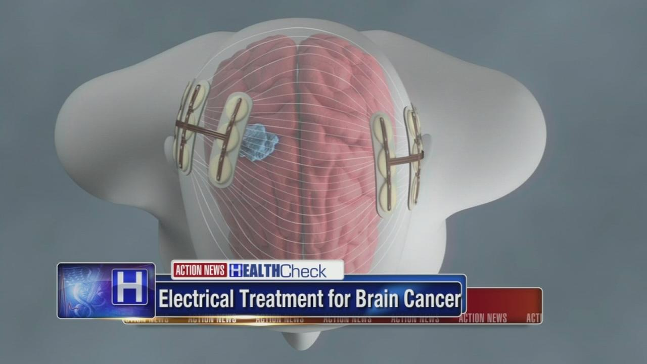A sci-fi cancer therapy fights brain tumors, study finds