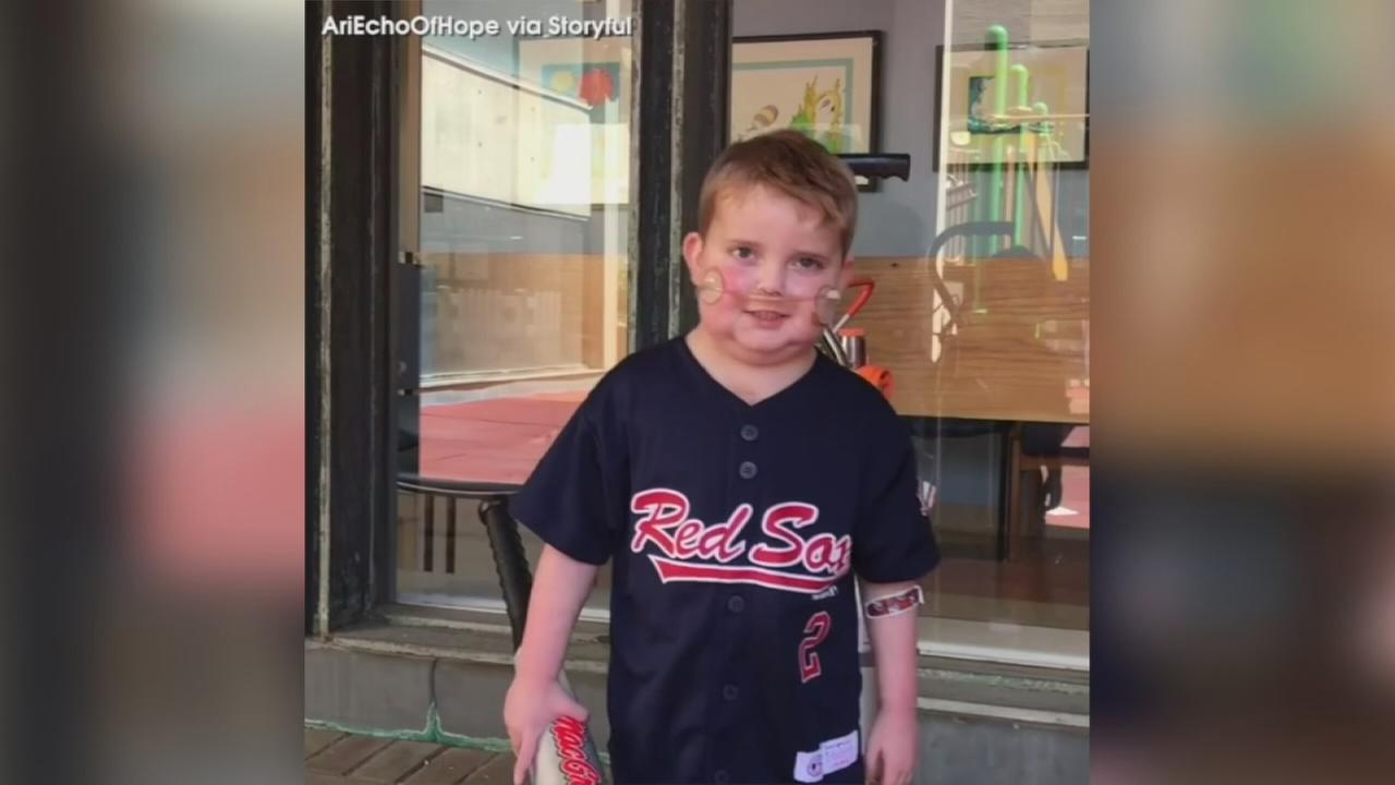 VIDEO: Little boy learns he is going home after heart transplant