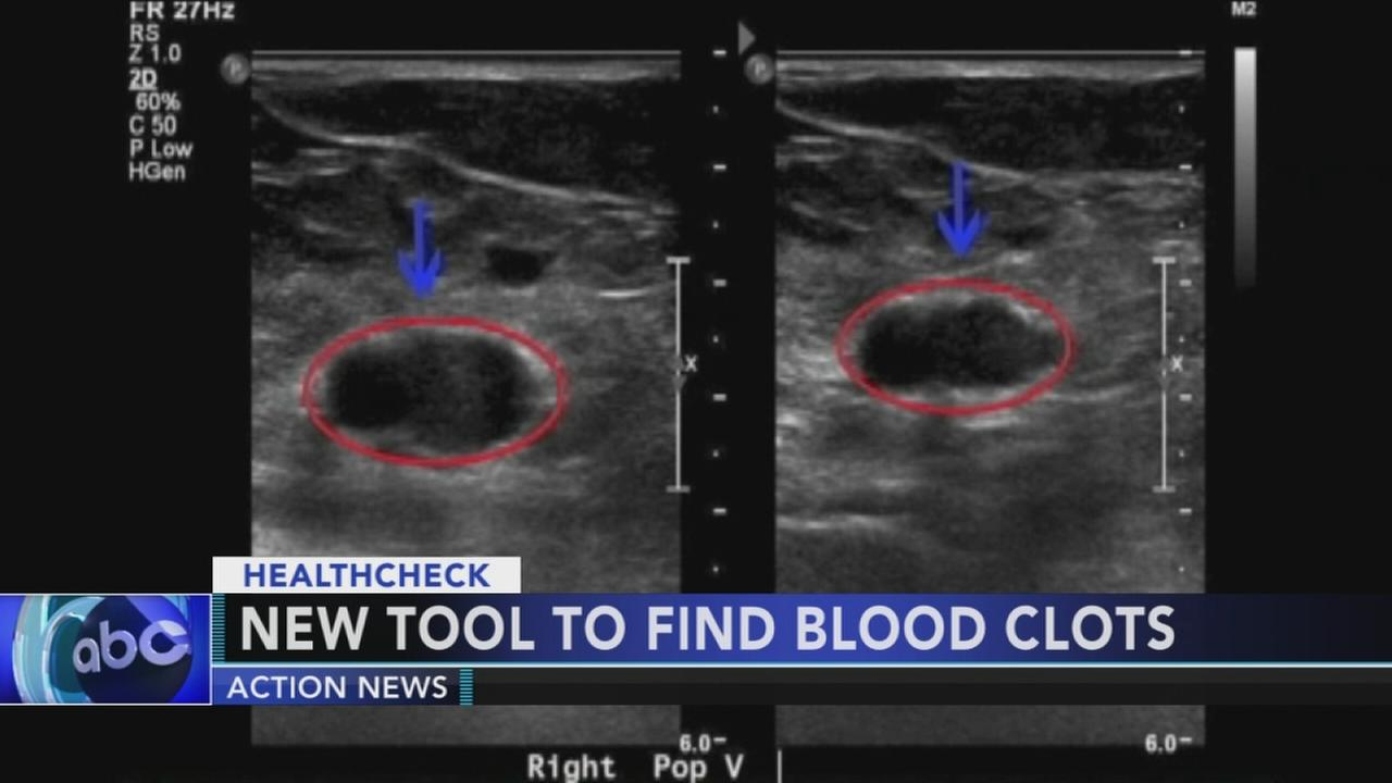 New tool to find blood clots