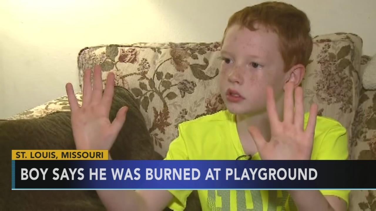 Boy says he was burned by hot monkey bars at playground
