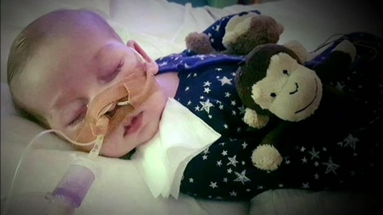US doctor meets with specialists treating baby with rare genetic condition